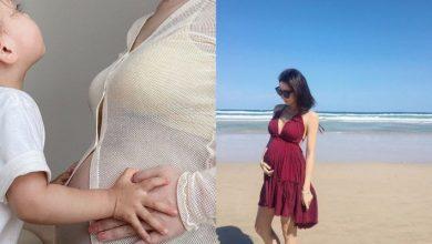 Photo of 懷孕期間荷爾蒙變化 生暗瘡、毛髮增加注意要避用含這4大成分的產品!